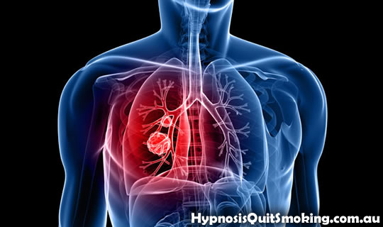 lung cancer Why Is Smoking Bad For You?
